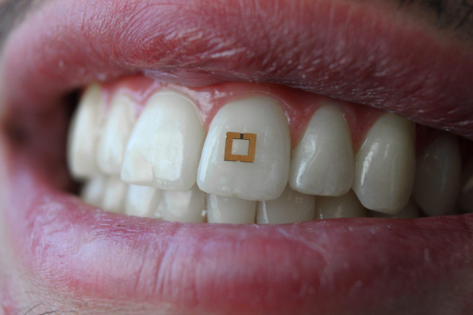 Американская версия умного зуба